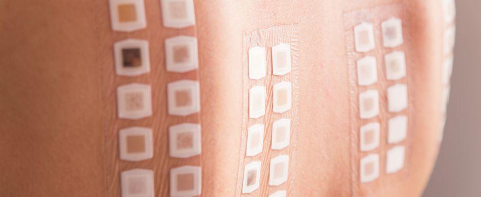 Allergien: 5 häufige Fragen im Überblick