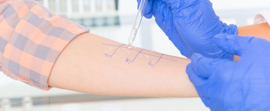 Allergie-Diagnose: Diese Allergietests stehen dem Arzt zur Verfügung