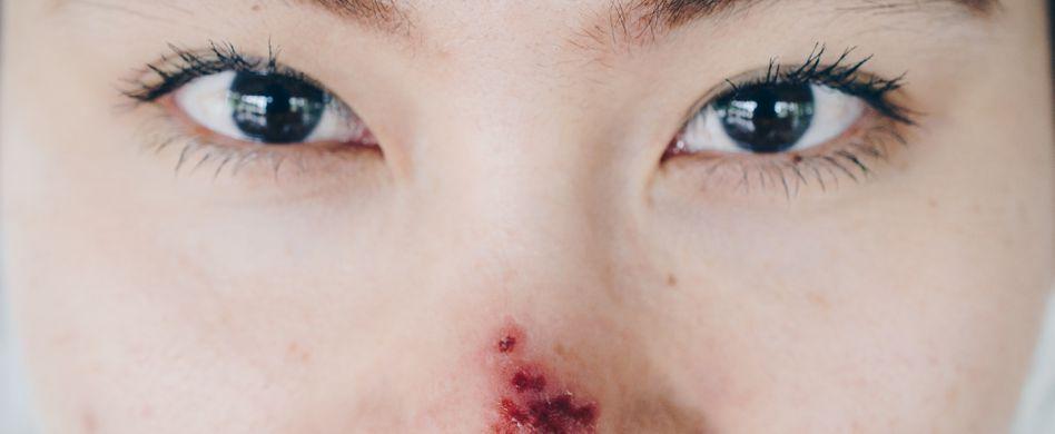 Nasenherpes: Wann zum Arzt und was hilft?