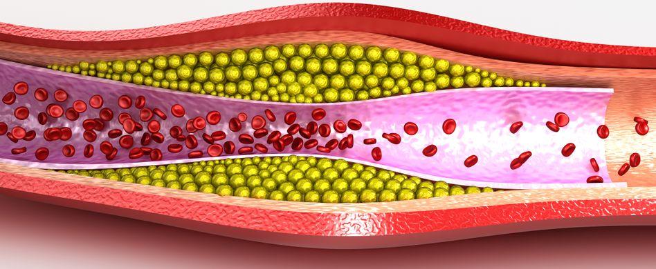 Koronare Herzkrankheit (KHK) bringt den Herzinfarkt