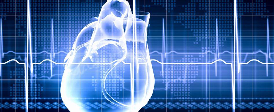 Herzinfarkt ohne Symptome: Stummer Herzinfarkt häufiger als gedacht
