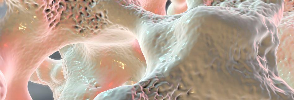 Selbsttest Osteoporose: Wie hoch ist mein Osteoporose-Risiko?