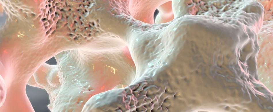 Was ist Osteoporose?