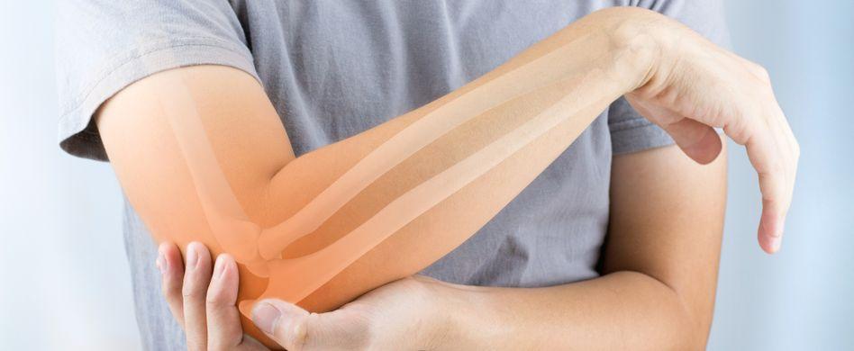 Was ist eigentlich Arthrose?