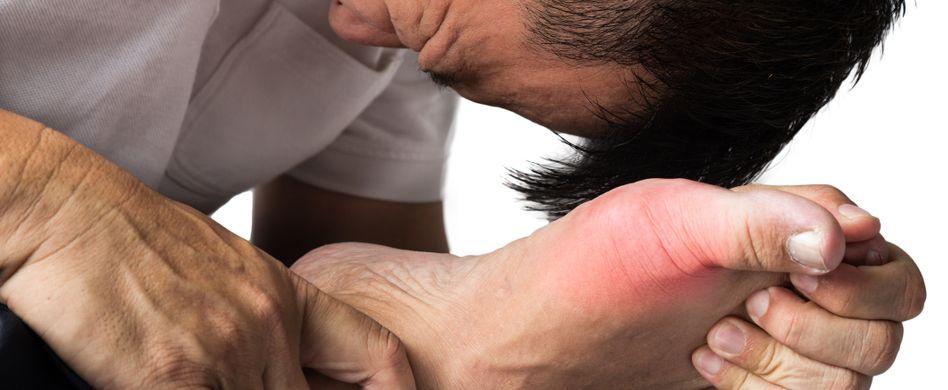 Gichtanfall: Was tun, wenn die Gelenkschmerzen zuschlagen?