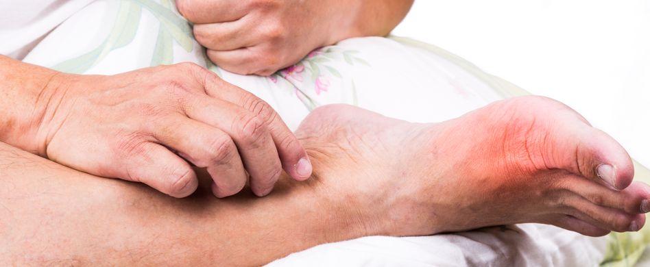 Gicht: Behandlung der Stoffwechselkrankheit