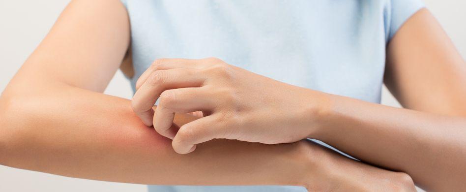 Borreliose durch Mücken: Übertragen die Blutsauger die Krankheit?