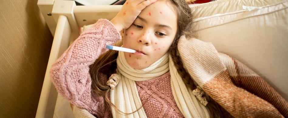 Windpocken-Symptome: Daran erkennen Sie, dass Ihr Kind Windpocken hat