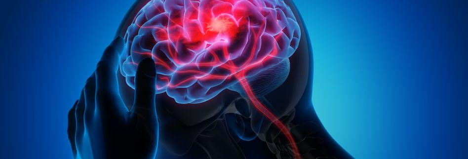 Diese 3 Parasiten können das menschliche Gehirn befallen