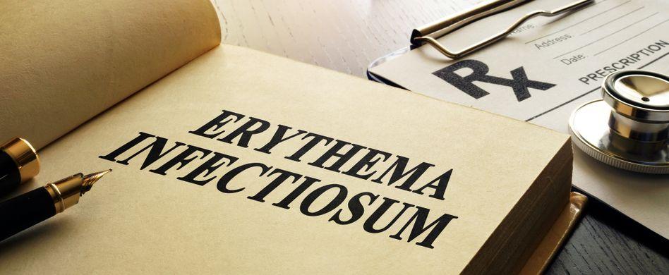 Erythema infectiosum: Was sind Ringelröteln?