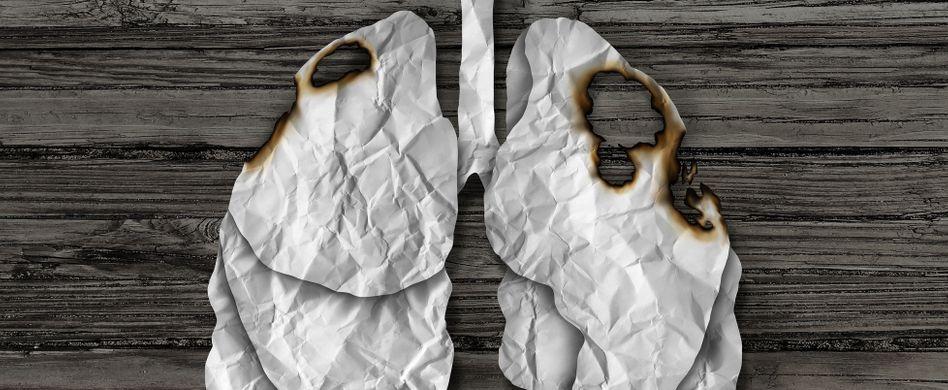 Lungenkrebs Ursachen: Die größten Risikofaktoren für Lungenkrebs