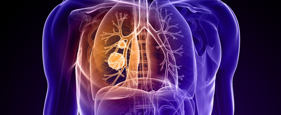 Lungenkrebs: 5 Fakten zum Krebs in der Lunge