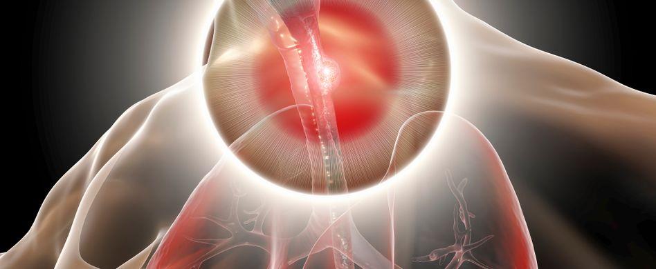 Speiseröhrenkrebs behandeln: Ist Speiseröhrenkrebs heilbar?