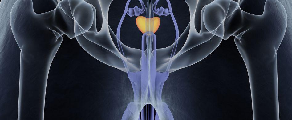 Prostatakrebs: 10 Fragen zum bösartigen Tumor der Vorsteherdrüse