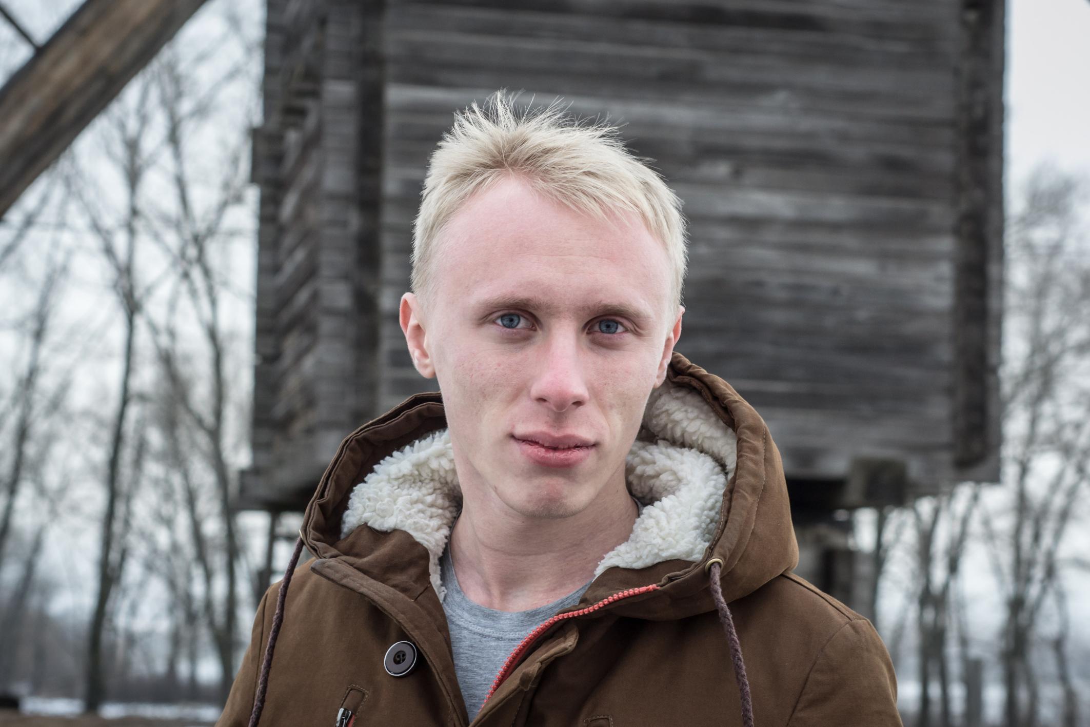 Albinismus → Erfahren Sie alles zu Ursachen und Symptomen