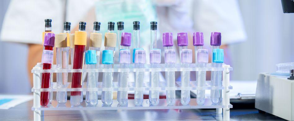 Blutwerte verstehen: Was die 4 wichtigsten Abkürzungen bedeuten