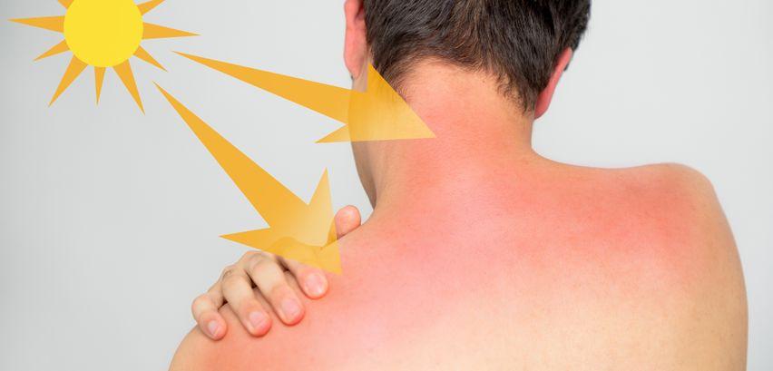 Sonnenbrand: Welcher Hauttyp bin ich und wie lange darf
