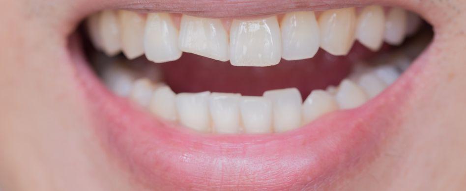 Zahn abgebrochen - was tun?