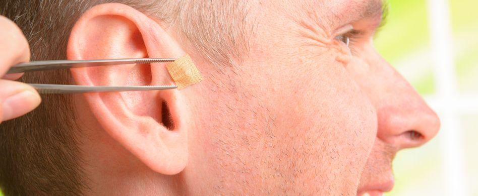 Akupunktur mit Dauernadeln: Durchführung und Wirkungsweise