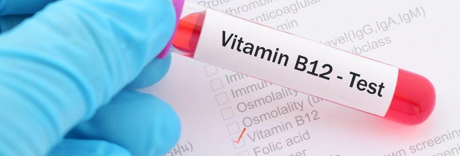 Vitamin B12-Test: Kosten, Werte, Notwendigkeit