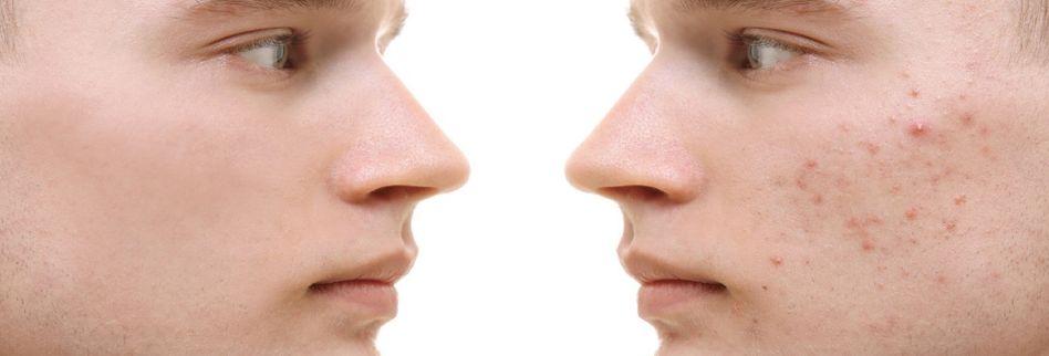 Vitamin B5 gegen Akne und Haarausfall? Ein Hautarzt klärt auf
