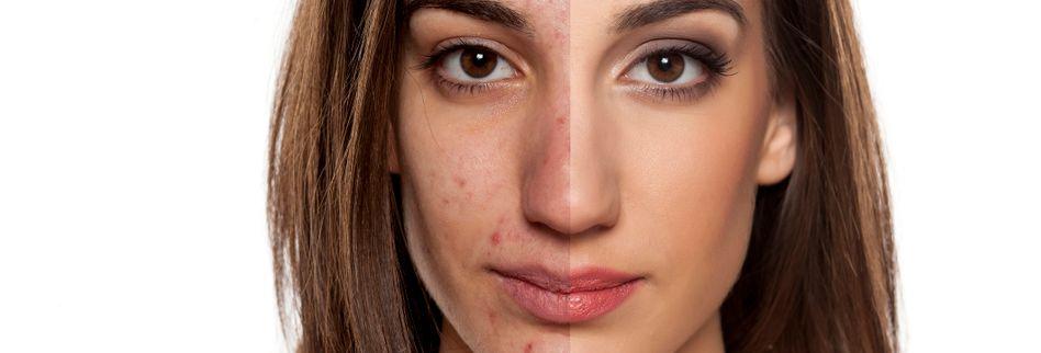 Akne: Nicht nur ein Problem junger Haut