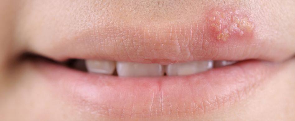 Herpes-Symptome: So zeigt sich Herpes an der Lippe