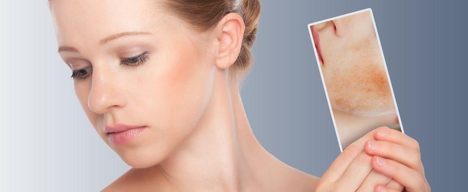 Rosazea behandeln: Entzündung im Gesicht lindern