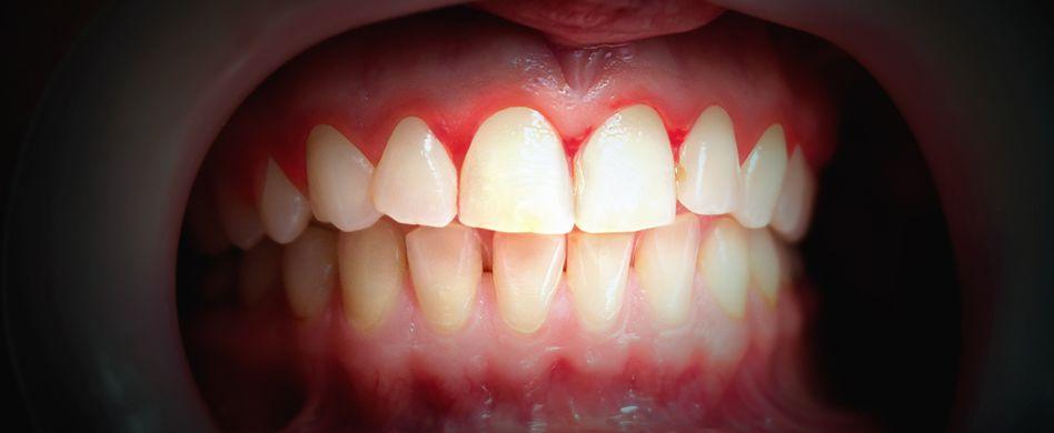 Was ist Parodontose? Ursachen, Symptome und Behandlung der Zahnfleischerkrankung
