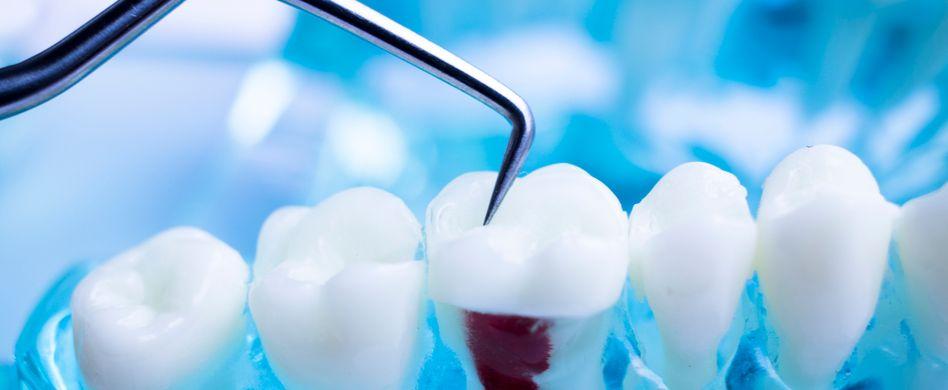 Zahnschmerzen nach Wurzelbehandlung