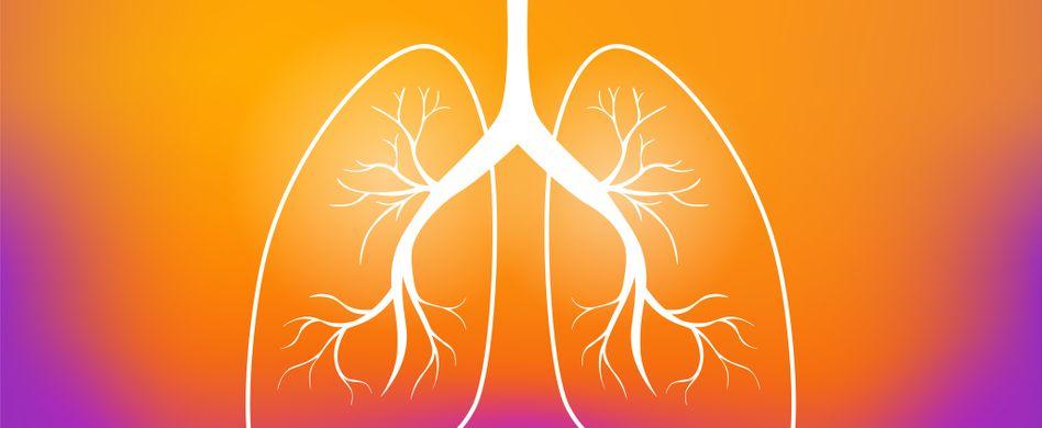 graphik von lunge