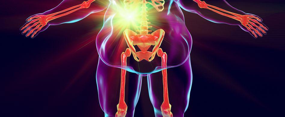 animiertes bild von mann mit übergewicht und gallenleiden
