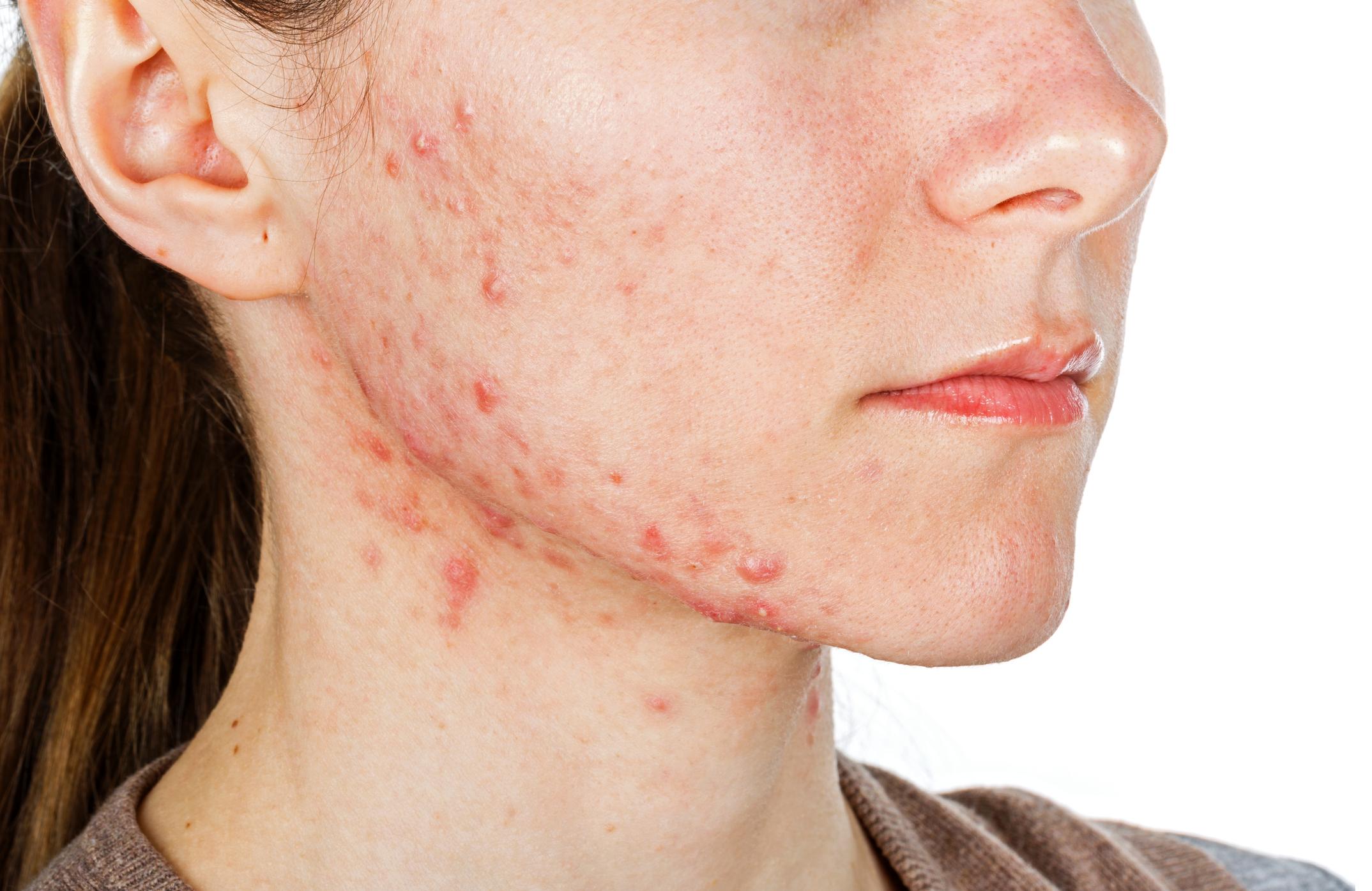 Gesicht verhornungsstörung Hautverhornung: Keratose: